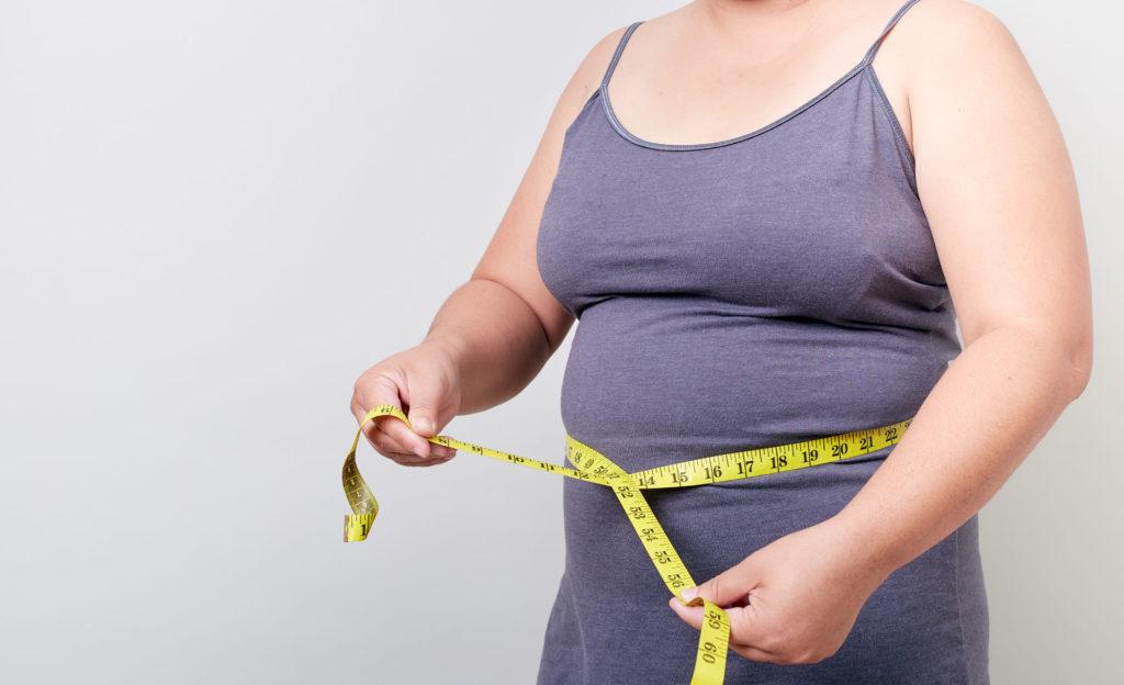 perdita di peso dopo gastrectomia verticale