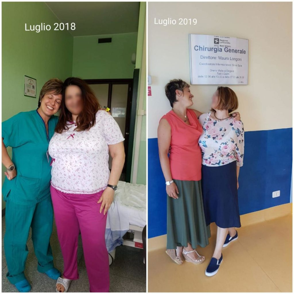 Chirurgia bariatrica Milano