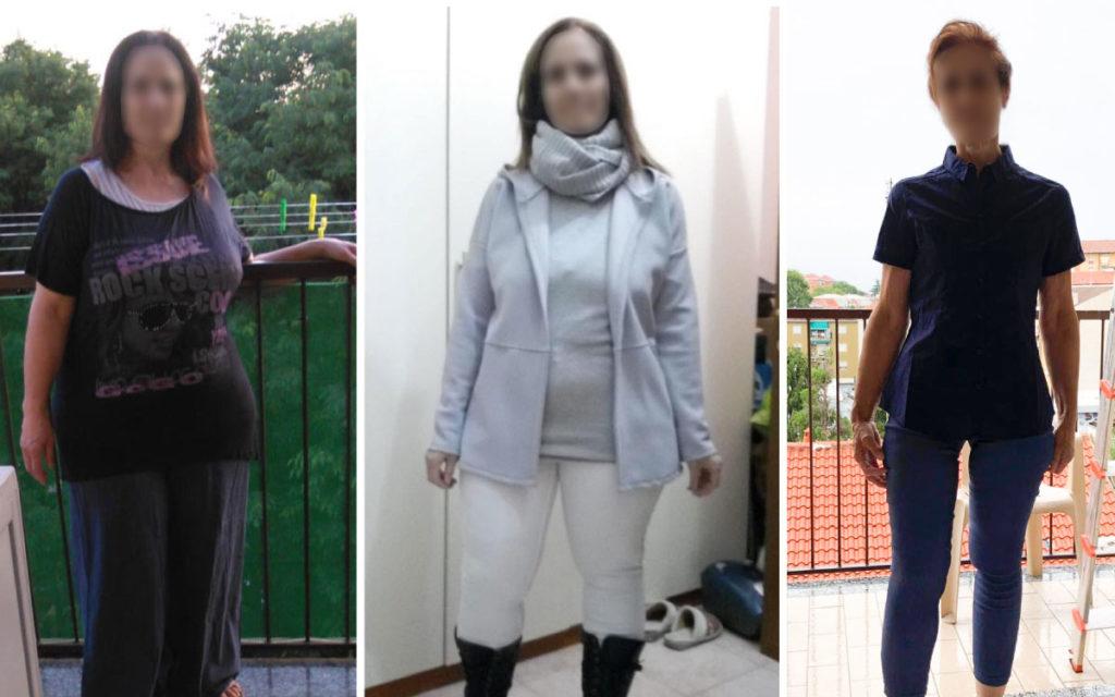 Chirurgia dell'obesità Correzzana